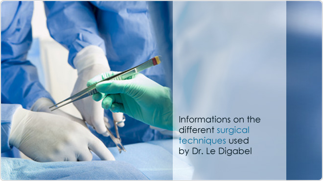 Informations on the different surgical techniques used by Dr. Le Digabel